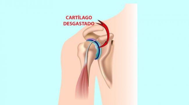 Lesiones principales de hombro: Artrosis