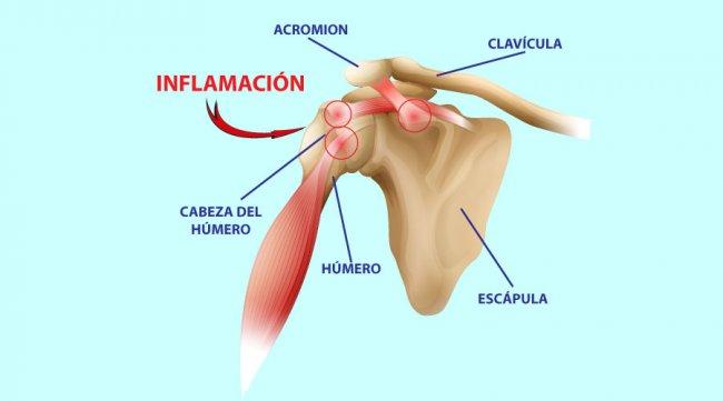 Lesiones principales de hombro: Tendinitis y tendinosis