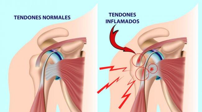 Lesiones principales de hombro: Manguito Rotador
