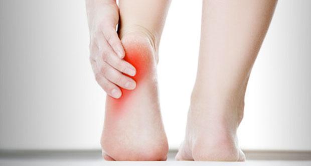 Fascitis plantar: una lesión muy común