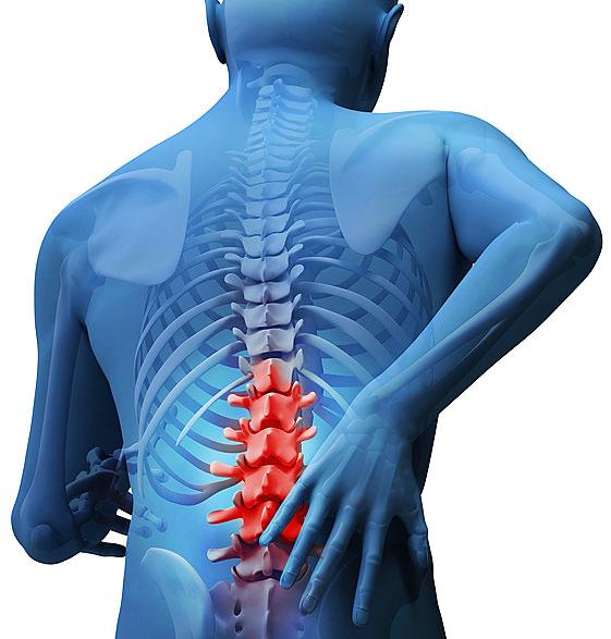 Lumbalgia: más que un dolor de espalda